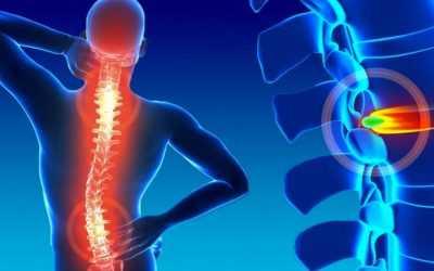O que é Hérnia de Disco: conheça as causas, os sintomas e o tratamento