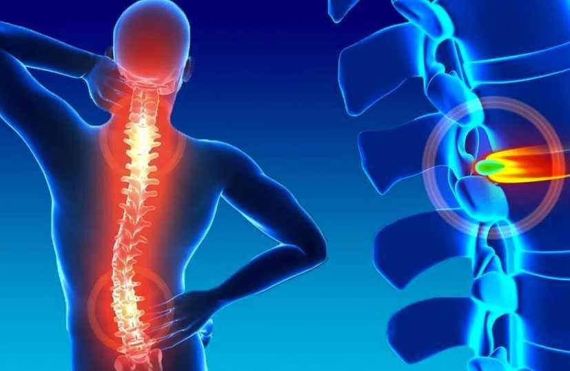 o-que-e-hernia-de-disco-conheca-as-causas-os-sintomas-e-o-tratamento