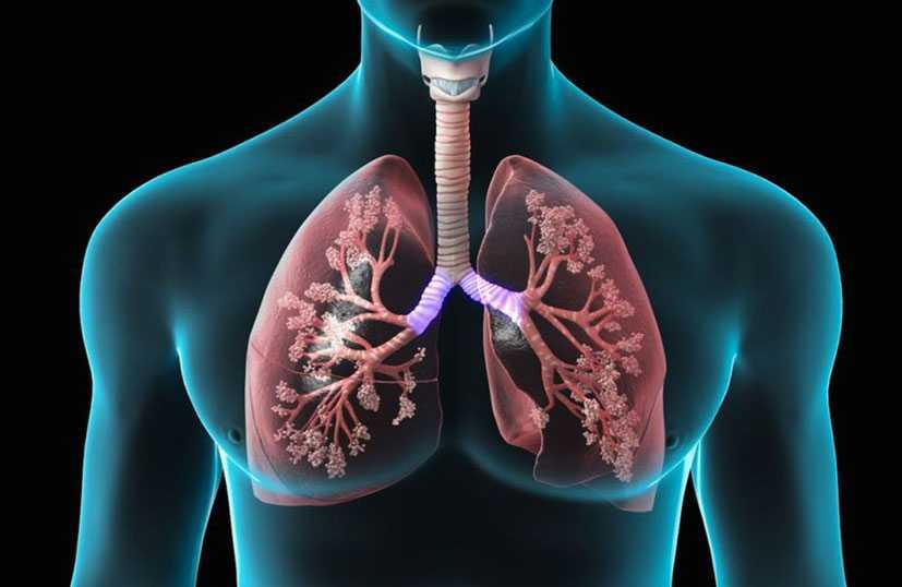 4 dicas de como (sempre) prevenir as doenças respiratórias