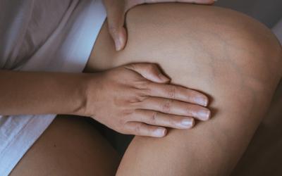 Varizes: saiba como cuidar da sua saúde circulatória
